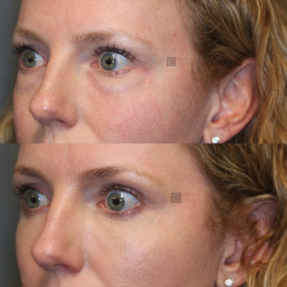 EnigmaLift - Eye Bag Removal Gallery - Patient 32743367 - Image 3