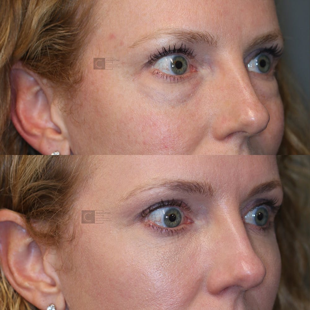 EnigmaLift - Eye Bag Removal Gallery - Patient 32743367 - Image 5