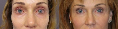 Dermal Fillers Gallery - Patient 32743404 - Image 1