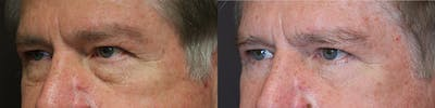EnigmaLift - Eye Bag Removal Gallery - Patient 32743418 - Image 1