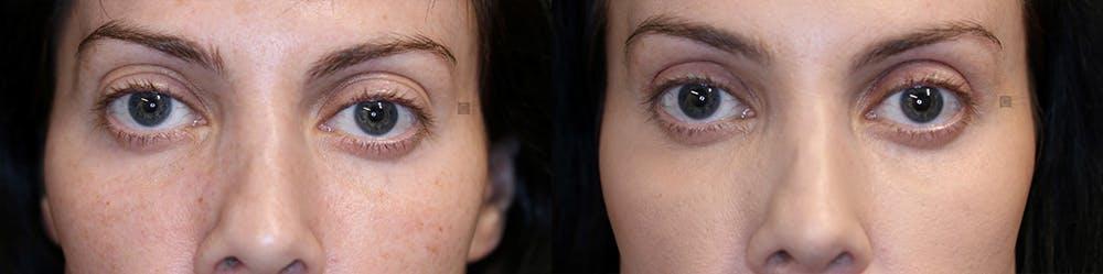 EnigmaLift - Upper Eyelids Gallery - Patient 32763141 - Image 1