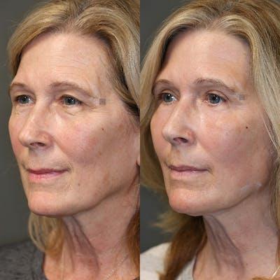 Laser Resurfacing Gallery - Patient 32763286 - Image 4