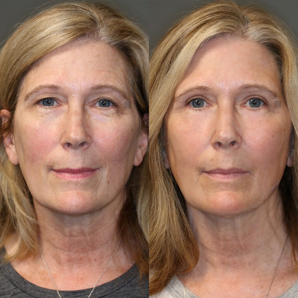 EnigmaLift - Eye Bag Removal Gallery - Patient 32763359 - Image 1