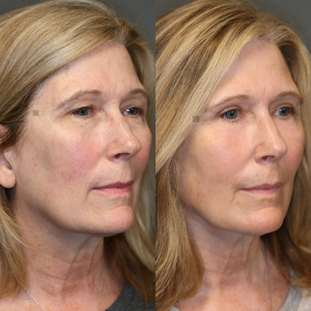 EnigmaLift - Eye Bag Removal Gallery - Patient 32763359 - Image 3
