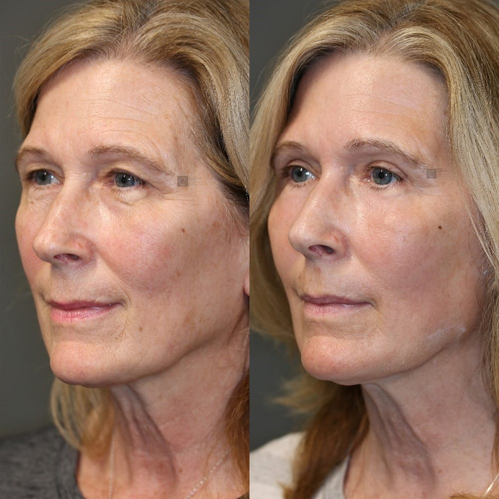 EnigmaLift - Eye Bag Removal Gallery - Patient 32763359 - Image 4