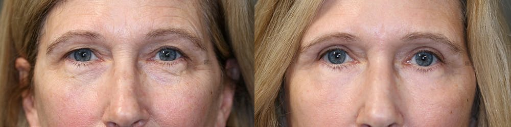 EnigmaLift - Upper Eyelids Gallery - Patient 32763411 - Image 2