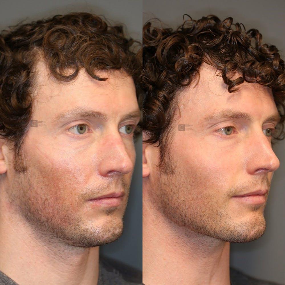 Facial Fat Transfer Gallery - Patient 32775698 - Image 1