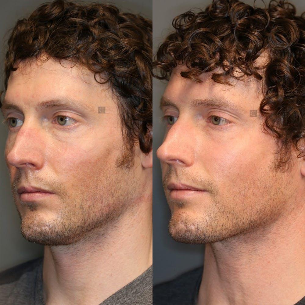 Facial Fat Transfer Gallery - Patient 32775698 - Image 2
