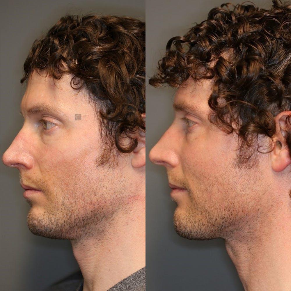 Facial Fat Transfer Gallery - Patient 32775698 - Image 4
