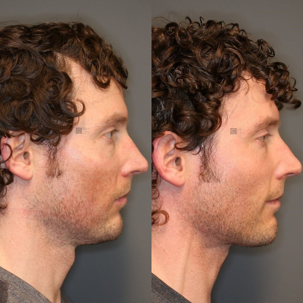 Structural Jawline Contouring Gallery - Patient 32775782 - Image 3