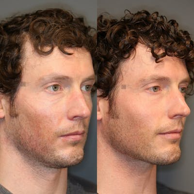 Laser Resurfacing Gallery - Patient 32775892 - Image 1