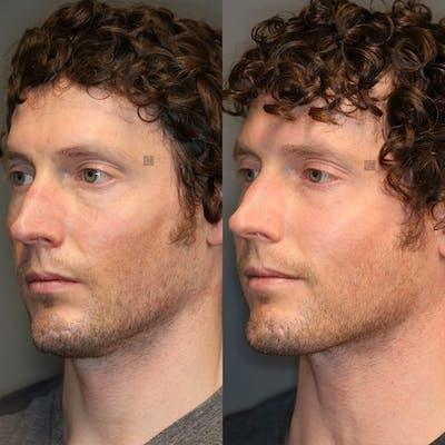 Laser Resurfacing Gallery - Patient 32775892 - Image 2