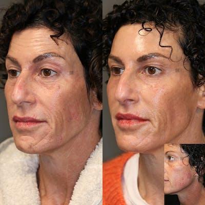 Scar Treatment Gallery - Patient 36202180 - Image 1