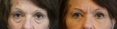 EnigmaLift - Eye Bag Removal Gallery - Patient 36202562 - Image 1