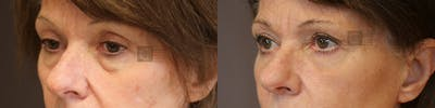 EnigmaLift - Eye Bag Removal Gallery - Patient 36202562 - Image 2