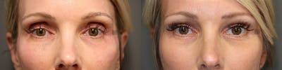 EnigmaLift - Upper Eyelids Gallery - Patient 36202806 - Image 1