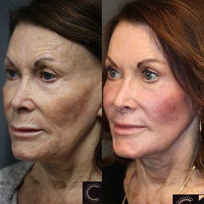 Laser Resurfacing Gallery - Patient 36210113 - Image 1