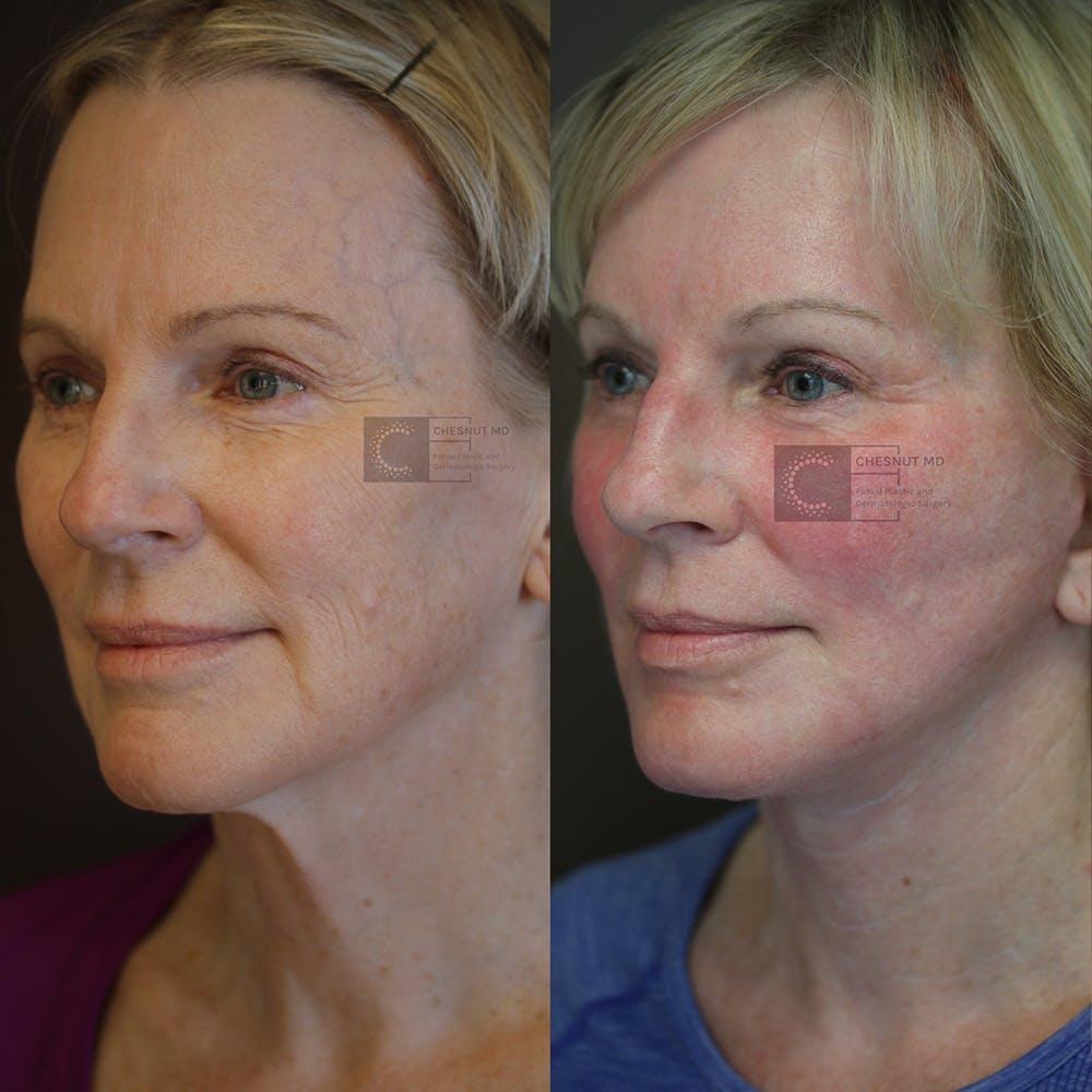 Laser Resurfacing Gallery - Patient 36217238 - Image 1