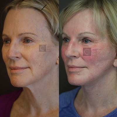 Laser Resurfacing Gallery - Patient 36217238 - Image 1