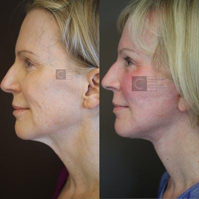 VidaLift - Face Gallery - Patient 36217276 - Image 2