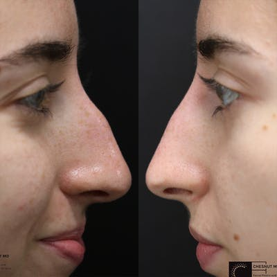 Non-Surgical Rhinoplasty Gallery - Patient 36429442 - Image 1