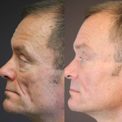Dermal Fillers Gallery - Patient 36451968 - Image 1