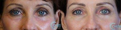 EnigmaLift - Upper Eyelids Gallery - Patient 36501567 - Image 1