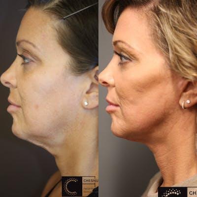 VidaLift - Face Gallery - Patient 36517592 - Image 1