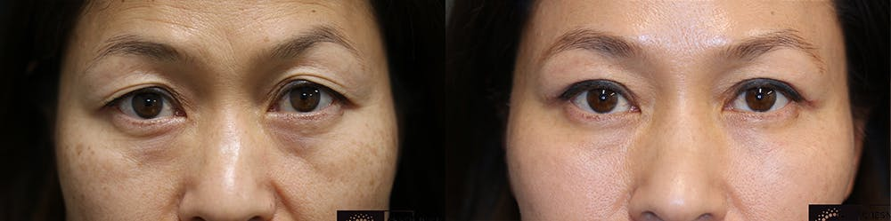 Dermal Fillers Gallery - Patient 36518782 - Image 1