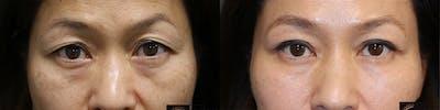 EnigmaLift - Upper Eyelids Gallery - Patient 36518829 - Image 1