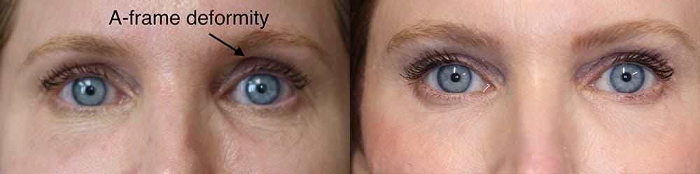 EnigmaLift - Upper Eyelids Gallery - Patient 36519739 - Image 1