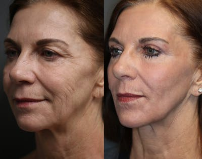 Brow Lift Gallery - Patient 36534133 - Image 1