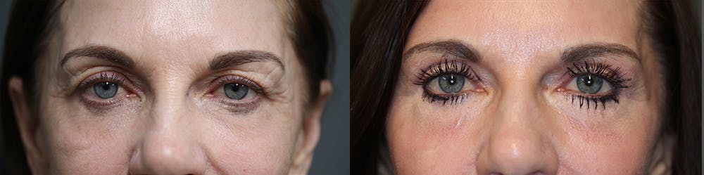 EnigmaLift - Upper Eyelids Gallery - Patient 36534162 - Image 2