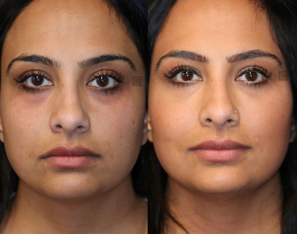 EnigmaLift - Eye Bag Removal Gallery - Patient 36535098 - Image 1