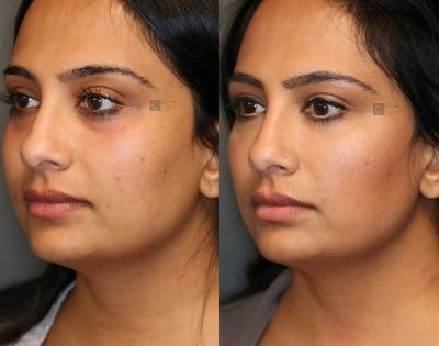 EnigmaLift - Eye Bag Removal Gallery - Patient 36535098 - Image 2