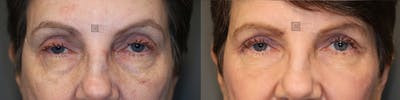 EnigmaLift - Eye Bag Removal Gallery - Patient 36535111 - Image 1