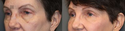 EnigmaLift - Eye Bag Removal Gallery - Patient 36535111 - Image 2