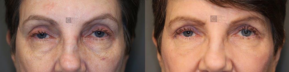 Laser Resurfacing Gallery - Patient 36535117 - Image 1