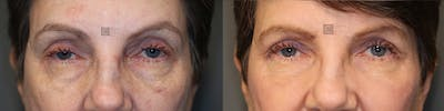 Laser Resurfacing Gallery - Patient 36535117 - Image 1