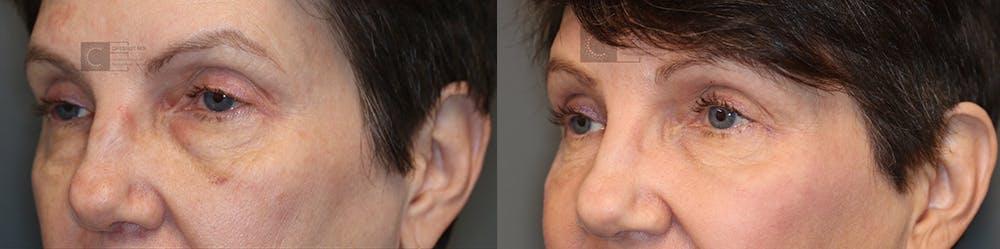 Laser Resurfacing Gallery - Patient 36535117 - Image 2