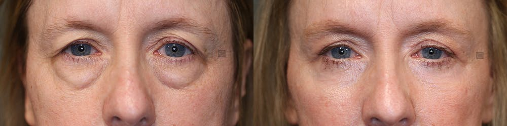 EnigmaLift - Eye Bag Removal Gallery - Patient 36535132 - Image 1