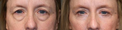 Brow Lift Gallery - Patient 36535930 - Image 1
