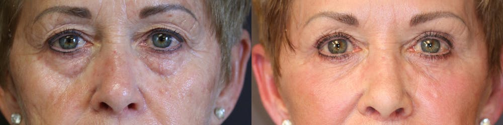 EnigmaLift - Eye Bag Removal Gallery - Patient 36217482 - Image 1