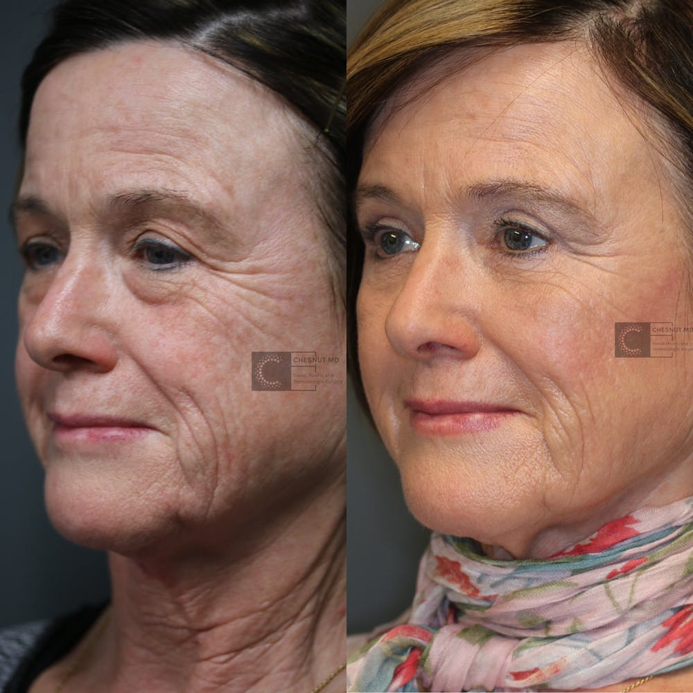 EnigmaLift - Eye Bag Removal Gallery - Patient 37510661 - Image 1