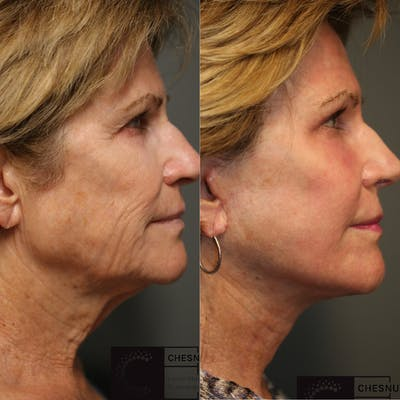 VidaLift - Face Gallery - Patient 37510670 - Image 1