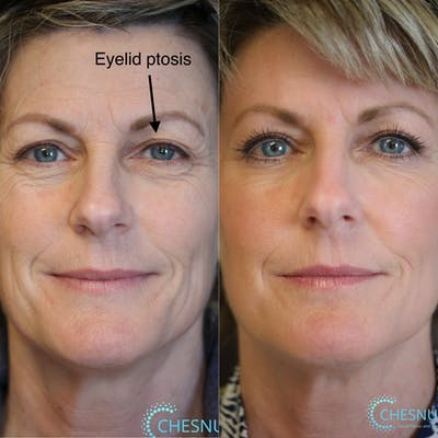 EnigmaLift - Upper Eyelids Gallery - Patient 37510712 - Image 1