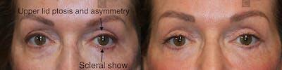 EnigmaLift - Upper Eyelids Gallery - Patient 37510722 - Image 1