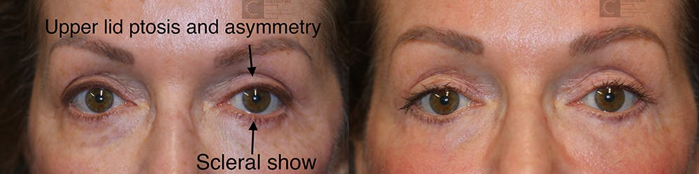 EnigmaLift - Eye Bag Removal Gallery - Patient 37510728 - Image 1