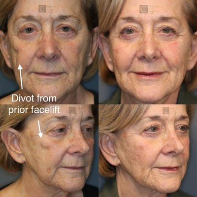 Dermal Fillers Gallery - Patient 37510741 - Image 1
