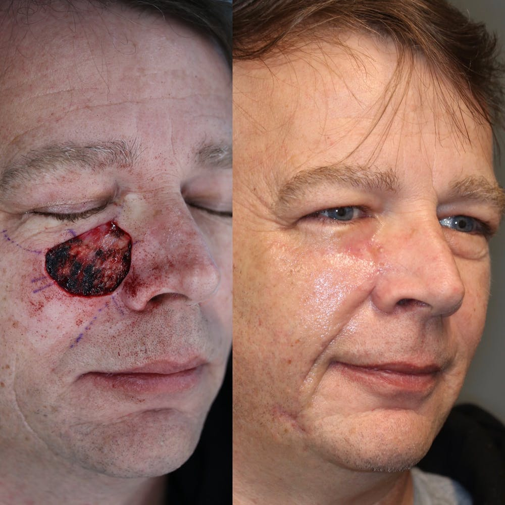 MOHS Gallery - Patient 37525356 - Image 1